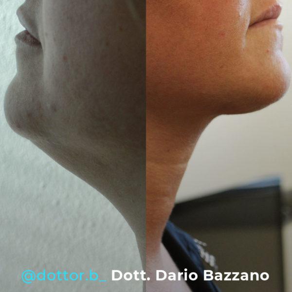 bioliponemesi-collo-doppio-mento-dott-dario-bazzao
