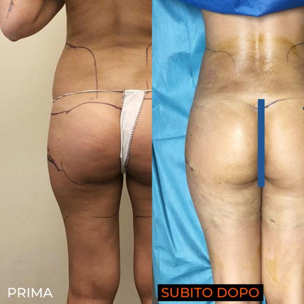 liposuzione-laser-glutei-post-operatorio