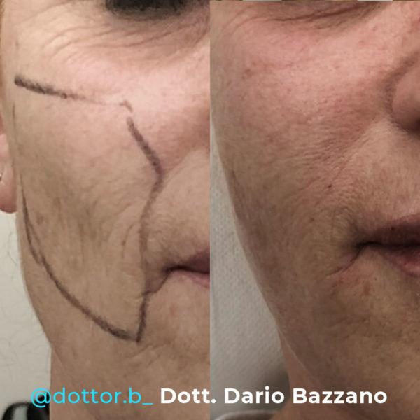 lipofiller-dario-bazzano